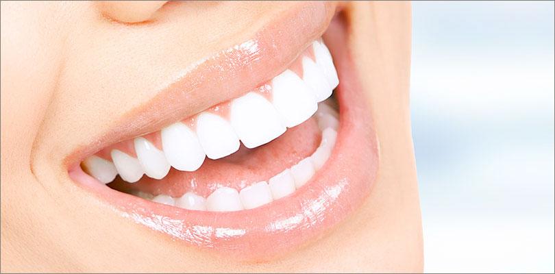 Teeth Whitening Stouffville