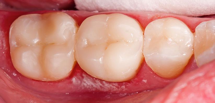 Dental Fillings Stouffville