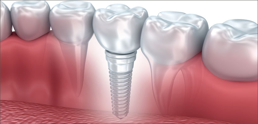 Dental Implants Stouffville