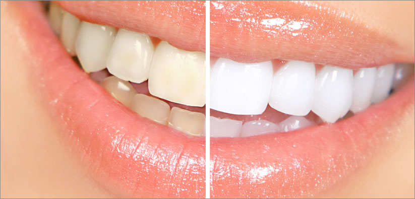 Stained Teeth Cleaning Stouffville