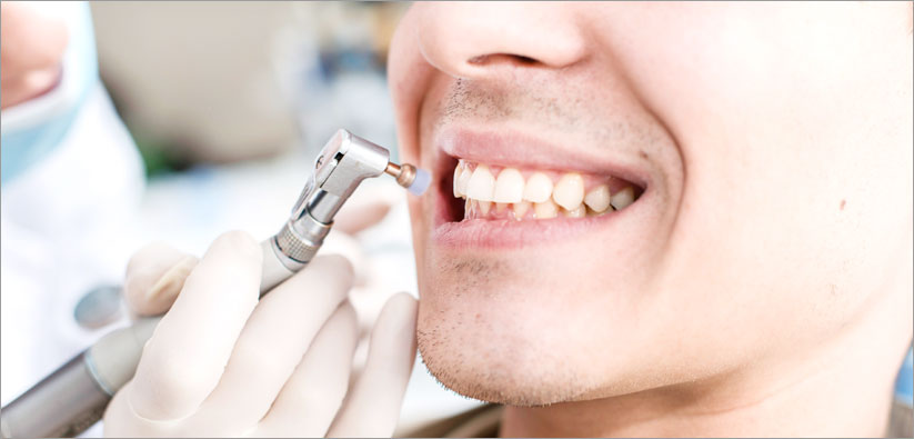 Teeth Cleaning Stouffville